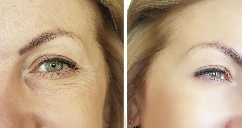 Types of Cosmetic Eyelid Surgery
